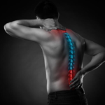 Car Accidents & Soft Tissue Injuries
